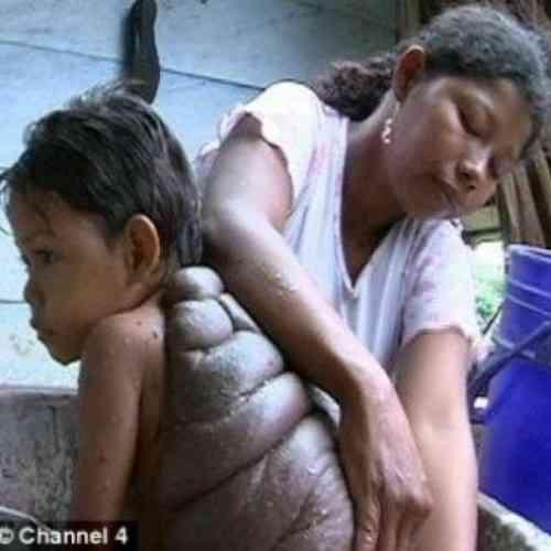 El 'niño tortuga' colombiano sufre una rara enfermedad cutánea