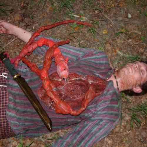 Un hombre se corta los intestinos y se los arroja a los policías