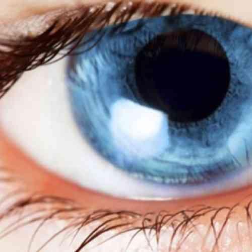 Cambiar el color de tus ojos es posible por 2.000 euros en una clínica de Barcelona