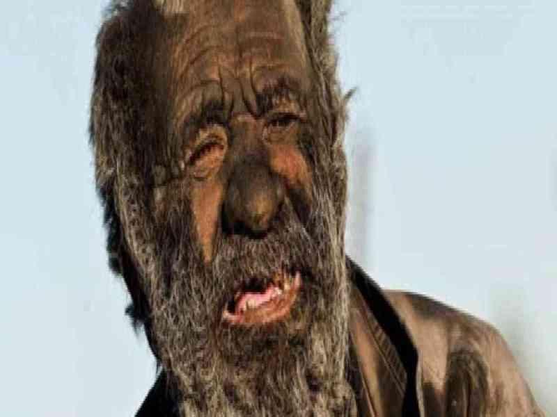 Un hombre iraní lleva 60 años sin bañarse