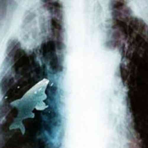 Médicos extraen pez vivo del pulmón de un niño