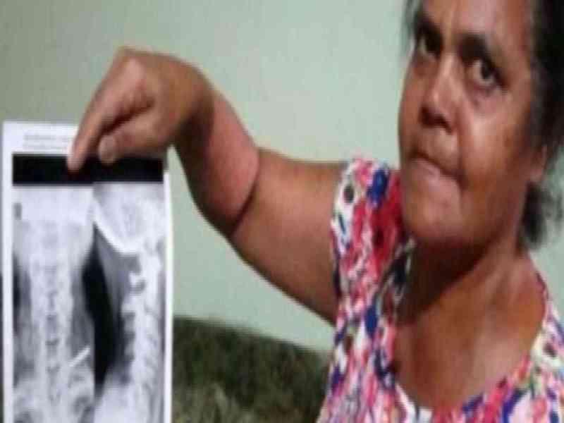 Una mujer descubre ahora que lleva 37 años con un cuchillo clavado en el hombro