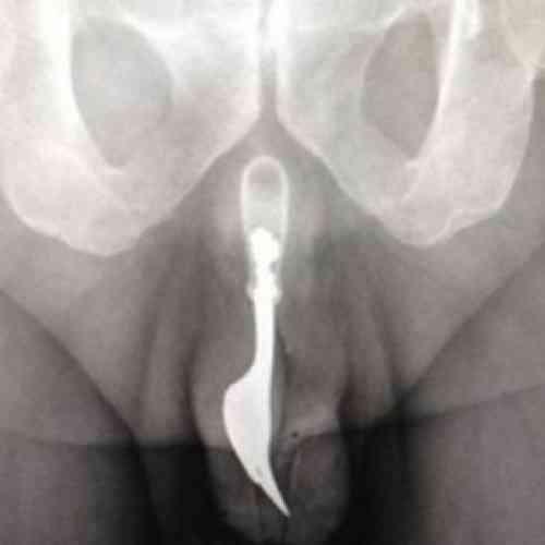 Extraen del pene de un hombre de 70 años un tenedor de 10 centímetros