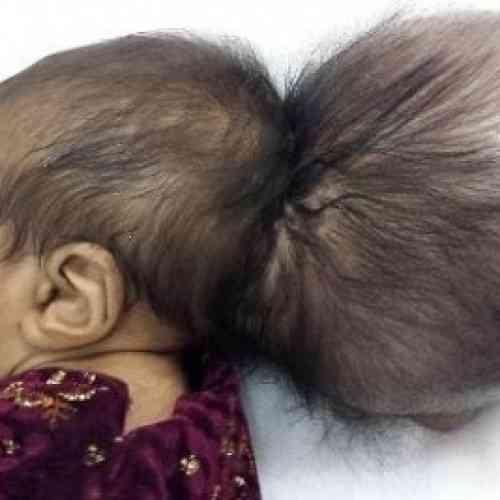 """Médicos afganos retiran una """"segunda cabeza"""" del cráneo de un bebé"""